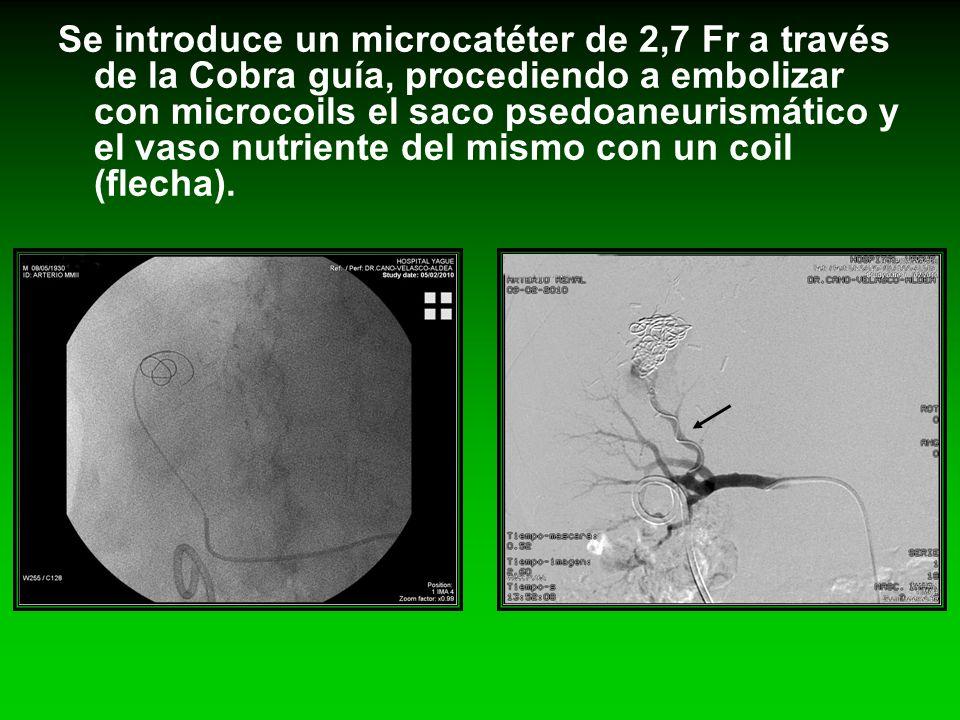 Se introduce un microcatéter de 2,7 Fr a través de la Cobra guía, procediendo a embolizar con microcoils el saco psedoaneurismático y el vaso nutrient