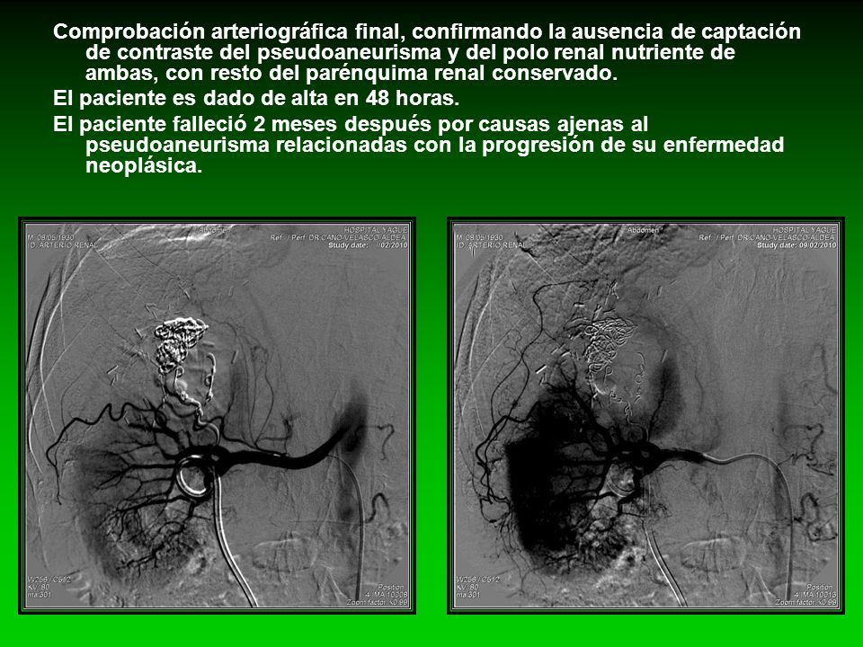 Comprobación arteriográfica final, confirmando la ausencia de captación de contraste del pseudoaneurisma y del polo renal nutriente de ambas, con rest