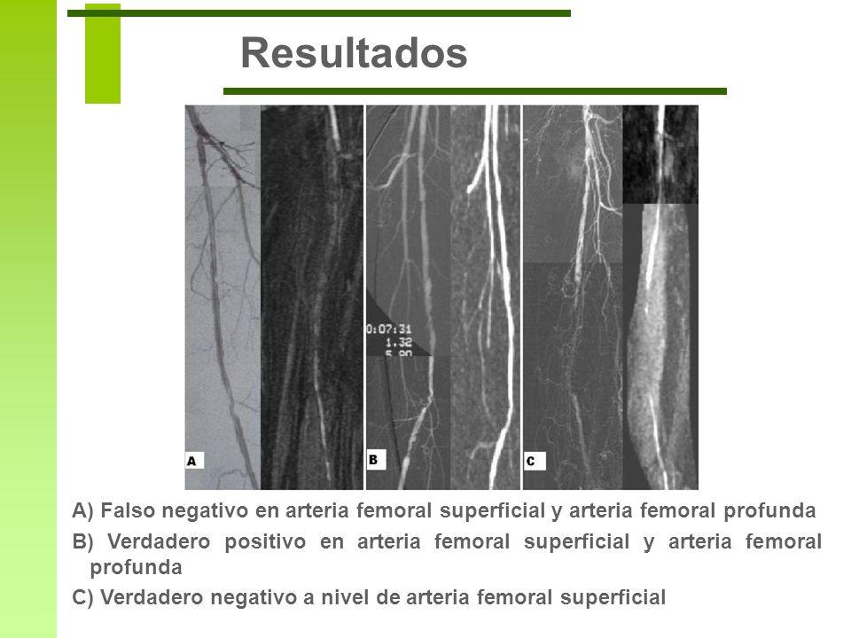 Resultados A) Falso negativo en arteria femoral superficial y arteria femoral profunda B) Verdadero positivo en arteria femoral superficial y arteria