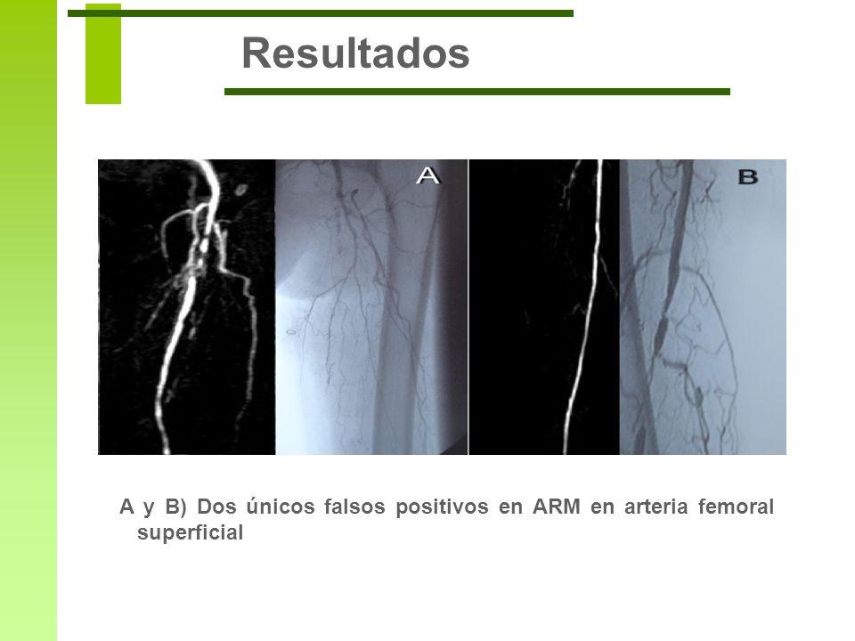 Resultados A y B) Dos únicos falsos positivos en ARM en arteria femoral superficial