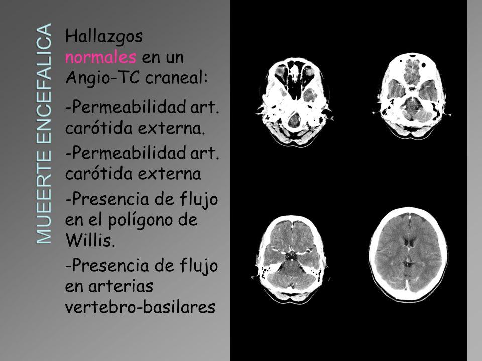 Hallazgos normales en un Angio-TC craneal: -Permeabilidad art. carótida externa. -Permeabilidad art. carótida externa -Presencia de flujo en el polígo