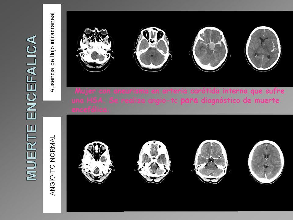 Ausencia de flujo intracraneal ANGIO-TC NORMAL Mujer con aneurisma en arteria carótida interna que sufre una HSA. Se realiza angio-tc para diagnóstico
