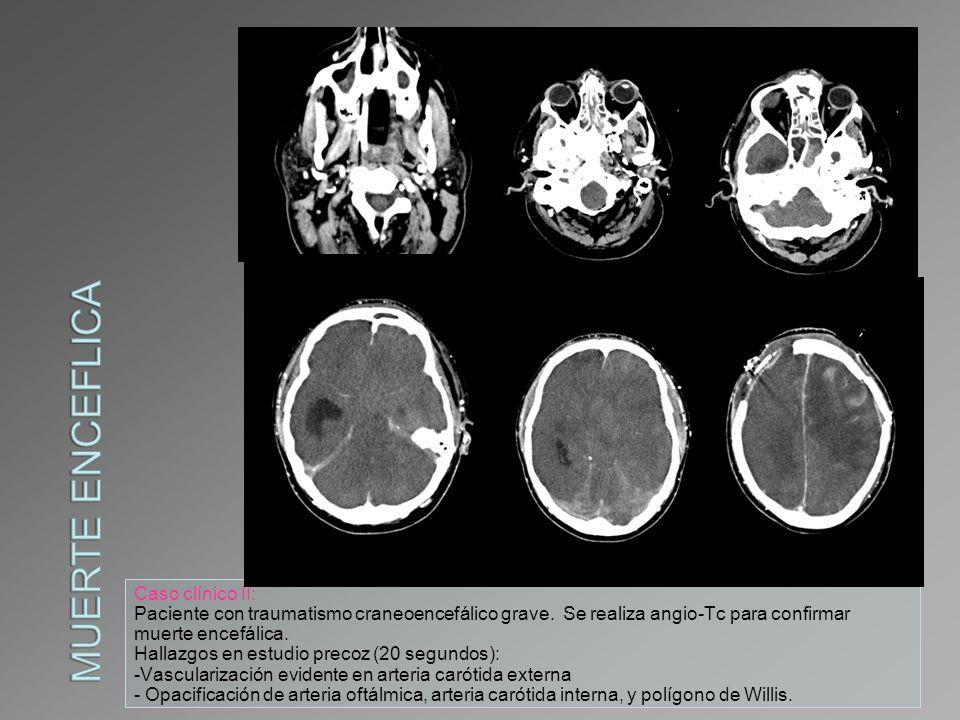 Caso clínico II: Paciente con traumatismo craneoencefálico grave. Se realiza angio-Tc para confirmar muerte encefálica. Hallazgos en estudio precoz (2