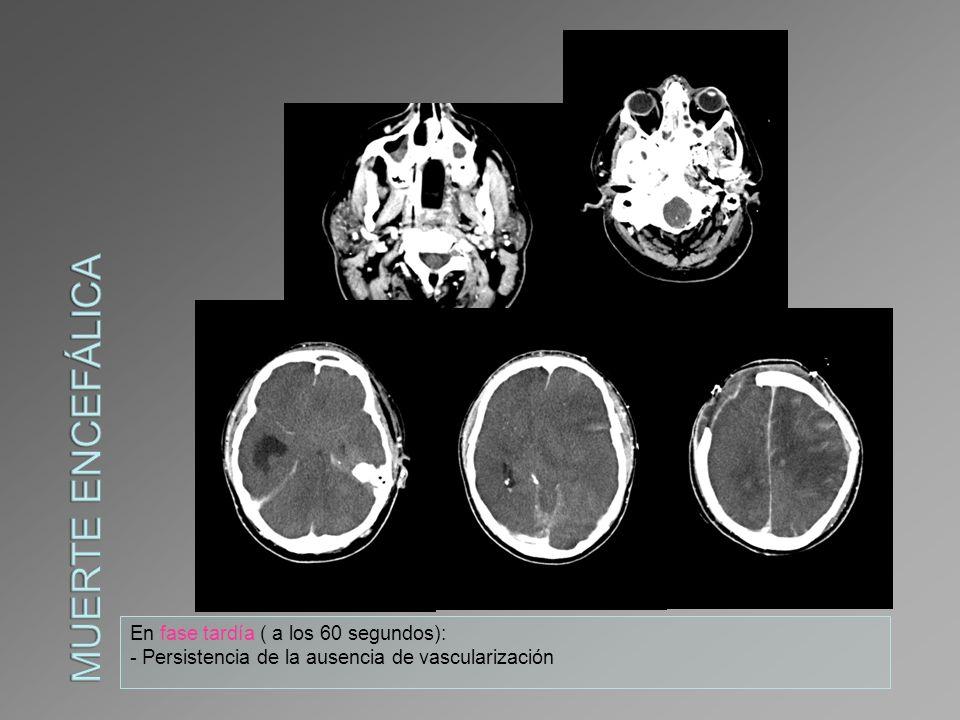 Se realiza Angio –Tc para descartar muerte encefálica: -Se confirma la ausencia de flujo intracraneal.