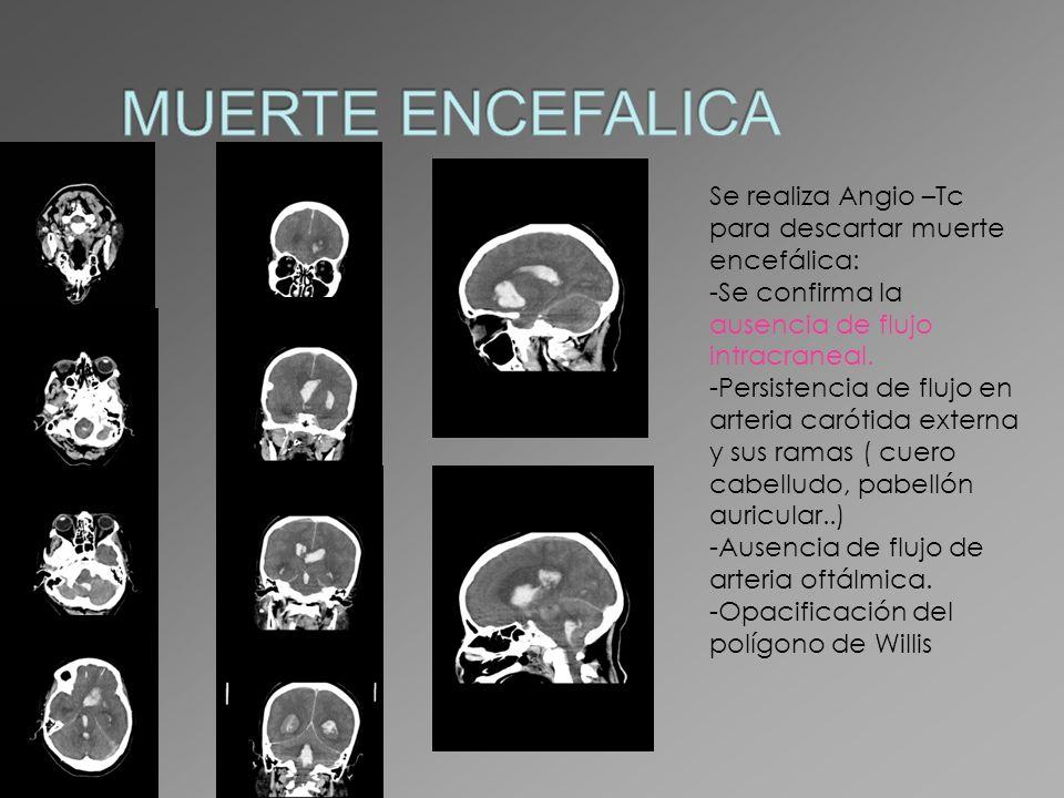 Se realiza Angio –Tc para descartar muerte encefálica: -Se confirma la ausencia de flujo intracraneal. -Persistencia de flujo en arteria carótida exte
