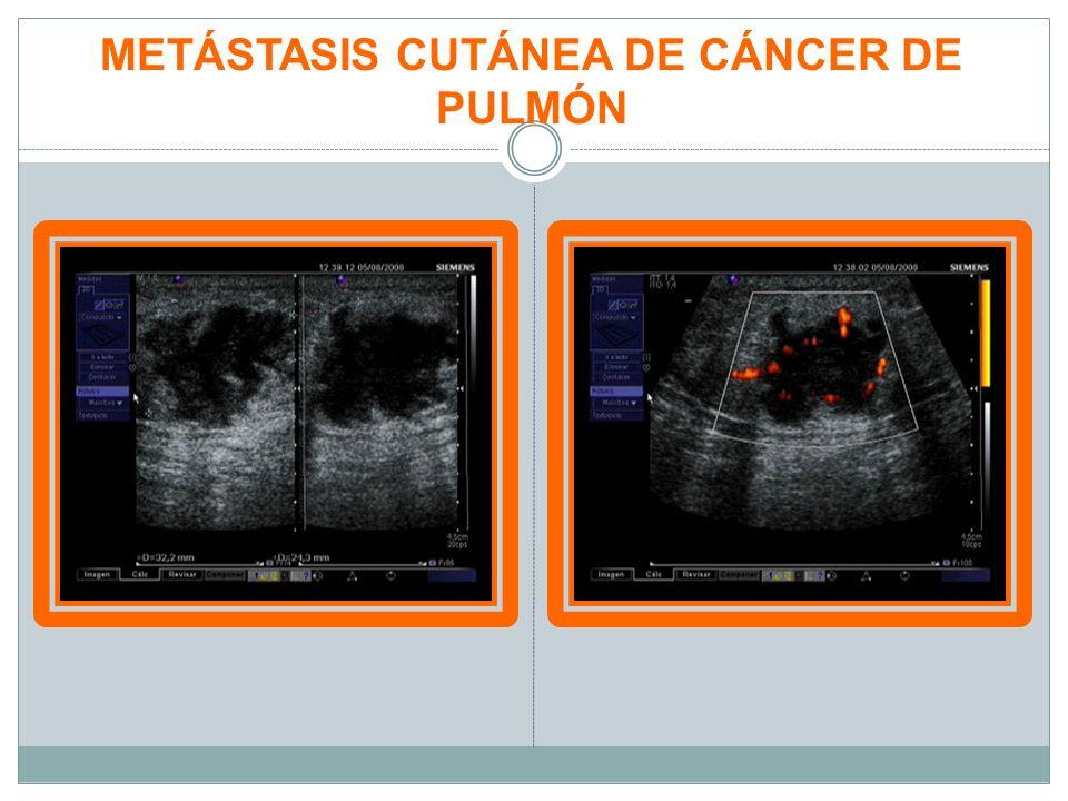 LESIONES TUMORALES MALIGNAS PATOLOGÍA DE PIEL Y ANEJOS