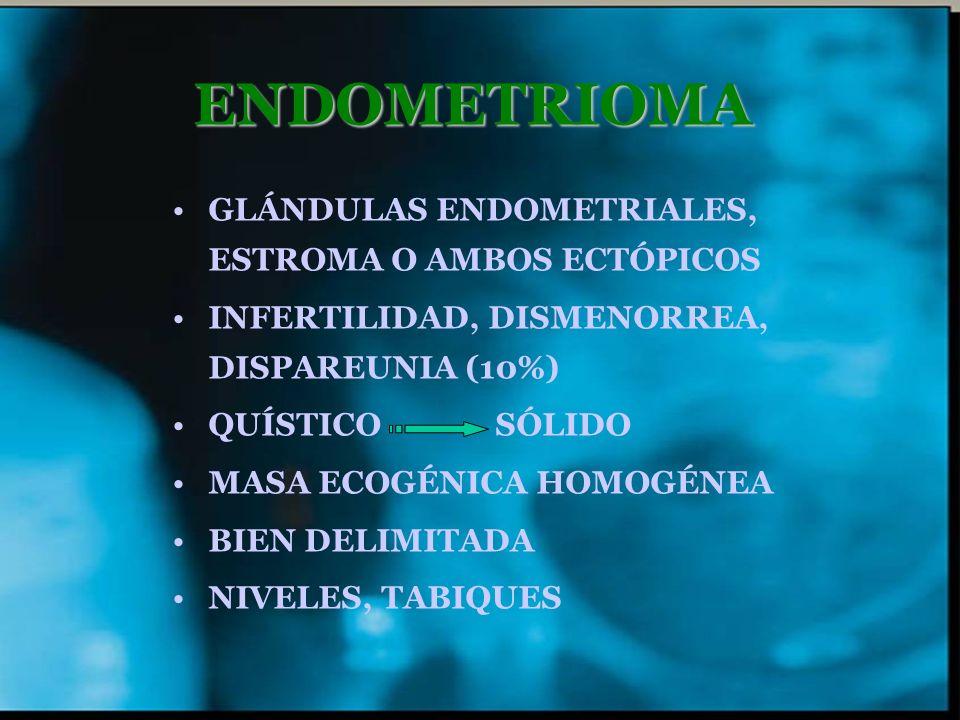 ENDOMETRIOMA GLÁNDULAS ENDOMETRIALES, ESTROMA O AMBOS ECTÓPICOS INFERTILIDAD, DISMENORREA, DISPAREUNIA (10%) QUÍSTICO SÓLIDO MASA ECOGÉNICA HOMOGÉNEA