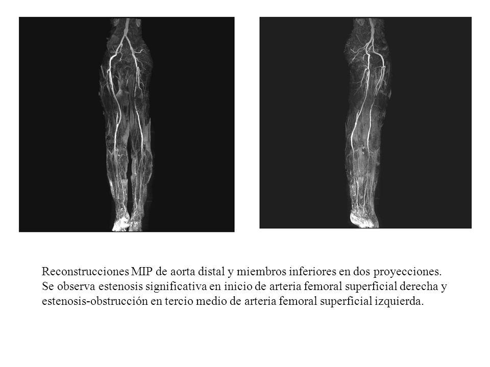 Reconstrucciones MIP de aorta distal y miembros inferiores en dos proyecciones. Se observa estenosis significativa en inicio de arteria femoral superf