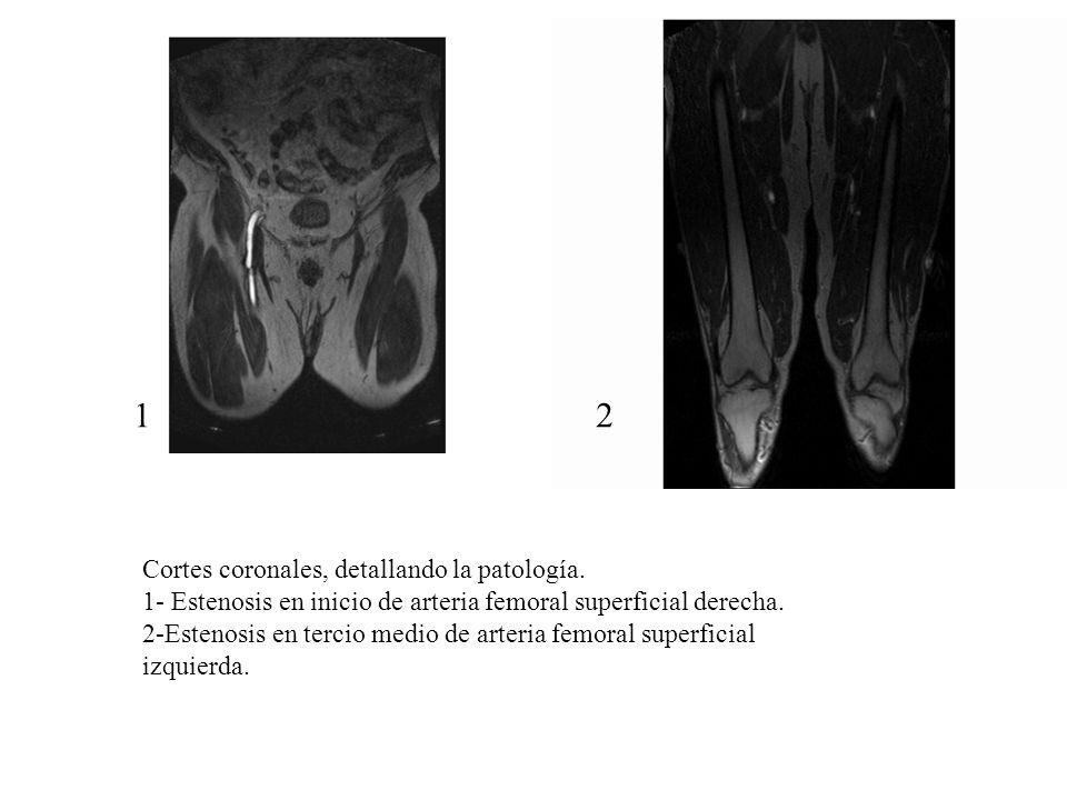 Cortes coronales, detallando la patología. 1- Estenosis en inicio de arteria femoral superficial derecha. 2-Estenosis en tercio medio de arteria femor