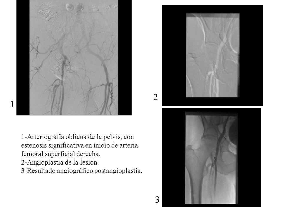 1-Arteriografía oblicua de la pelvis, con estenosis significativa en inicio de arteria femoral superficial derecha. 2-Angioplastia de la lesión. 3-Res