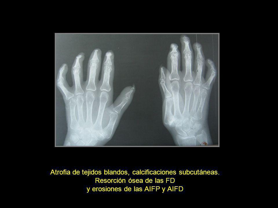 Atrofia de tejidos blandos, calcificaciones subcutáneas. Resorción ósea de las FD y erosiones de las AIFP y AIFD
