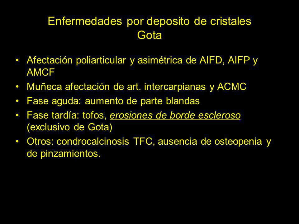 Enfermedades por deposito de cristales Gota Afectación poliarticular y asimétrica de AIFD, AIFP y AMCF Muñeca afectación de art. intercarpianas y ACMC