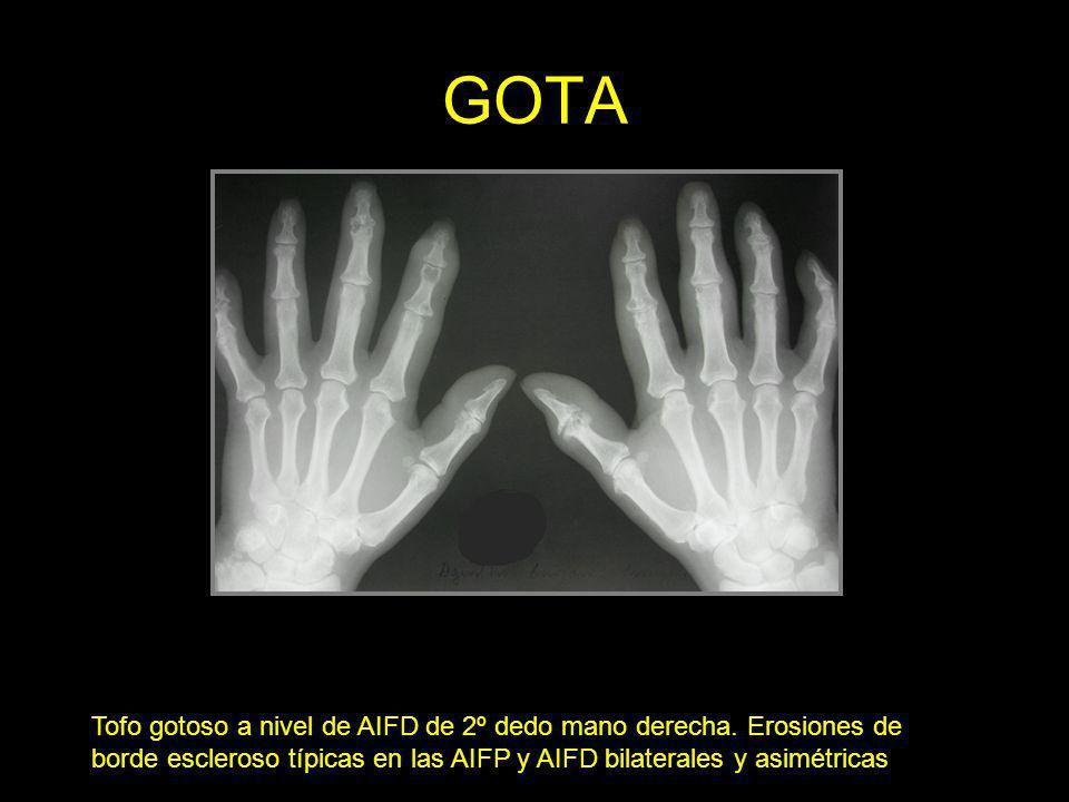 GOTA Tofo gotoso a nivel de AIFD de 2º dedo mano derecha. Erosiones de borde escleroso típicas en las AIFP y AIFD bilaterales y asimétricas