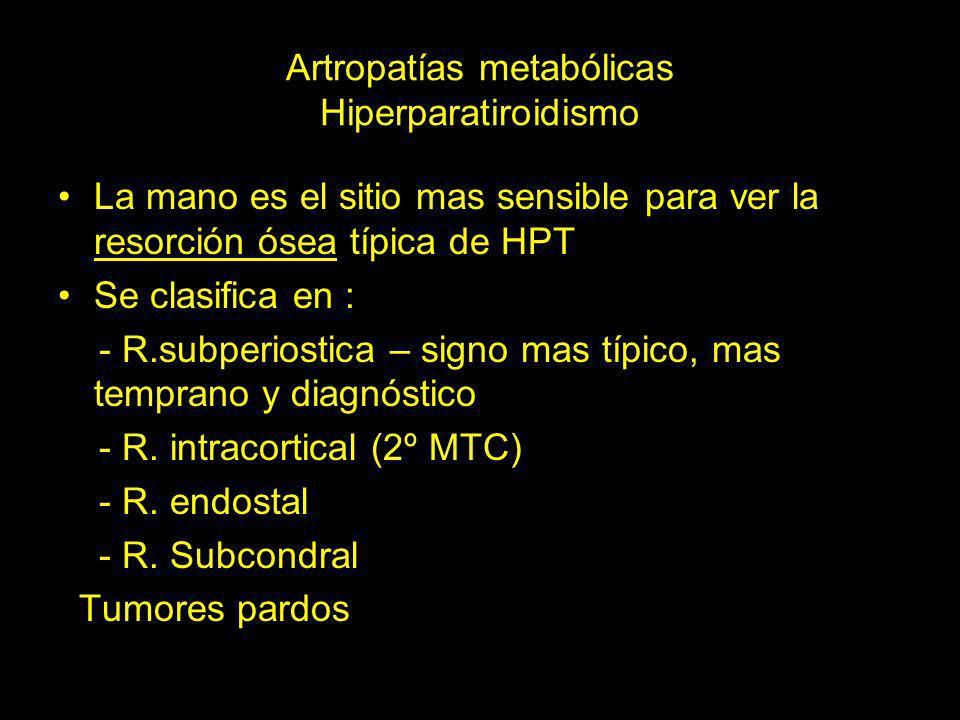 Hiperparatiroidismo primario Acrolisis masiva, resorción subperiostica de falange media de 2º y 3º dedo de forma bilateral y lesiones líticas que corresponde a los tumores pardos en el 4ºMTC de la mano derecha y FP del 5º dedo de la mano izquierda