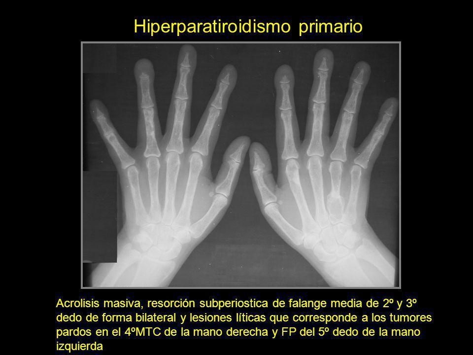 Hiperparatiroidismo primario Acrolisis masiva, resorción subperiostica de falange media de 2º y 3º dedo de forma bilateral y lesiones líticas que corr