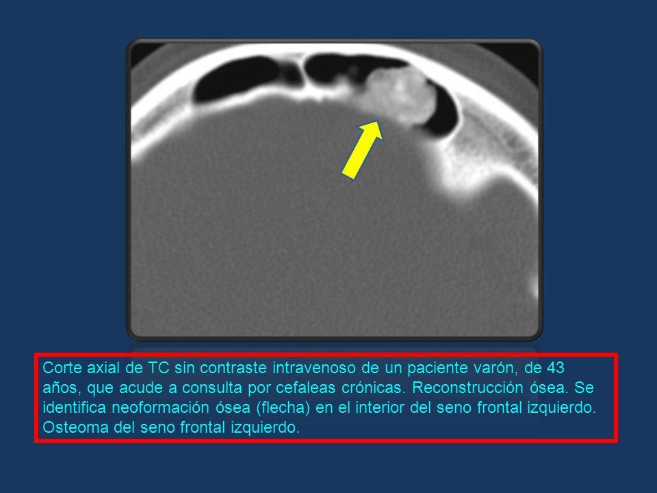 Corte axial de TC sin contraste intravenoso de un paciente varón, de 43 años, que acude a consulta por cefaleas crónicas. Reconstrucción ósea. Se iden