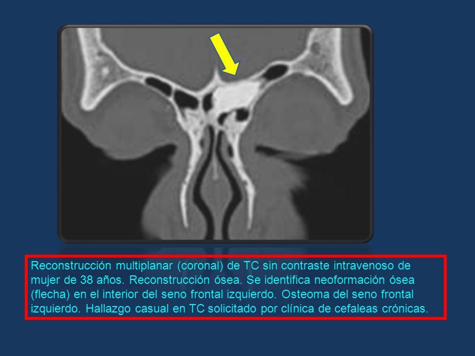 Reconstrucción multiplanar (coronal) de TC sin contraste intravenoso de mujer de 38 años. Reconstrucción ósea. Se identifica neoformación ósea (flecha
