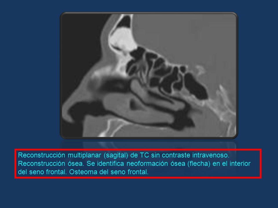 Reconstrucción multiplanar (sagital) de TC sin contraste intravenoso. Reconstrucción ósea. Se identifica neoformación ósea (flecha) en el interior del
