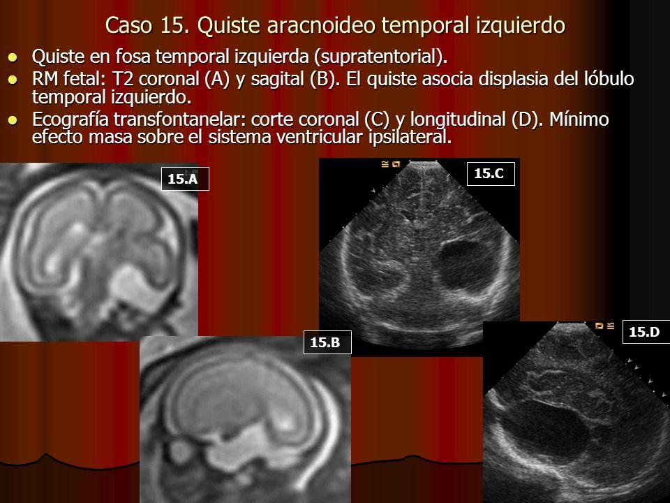 Caso 15. Quiste aracnoideo temporal izquierdo Quiste en fosa temporal izquierda (supratentorial). Quiste en fosa temporal izquierda (supratentorial).