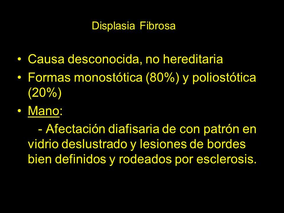 Displasia Fibrosa Causa desconocida, no hereditaria Formas monostótica (80%) y poliostótica (20%) Mano: - Afectación diafisaria de con patrón en vidri
