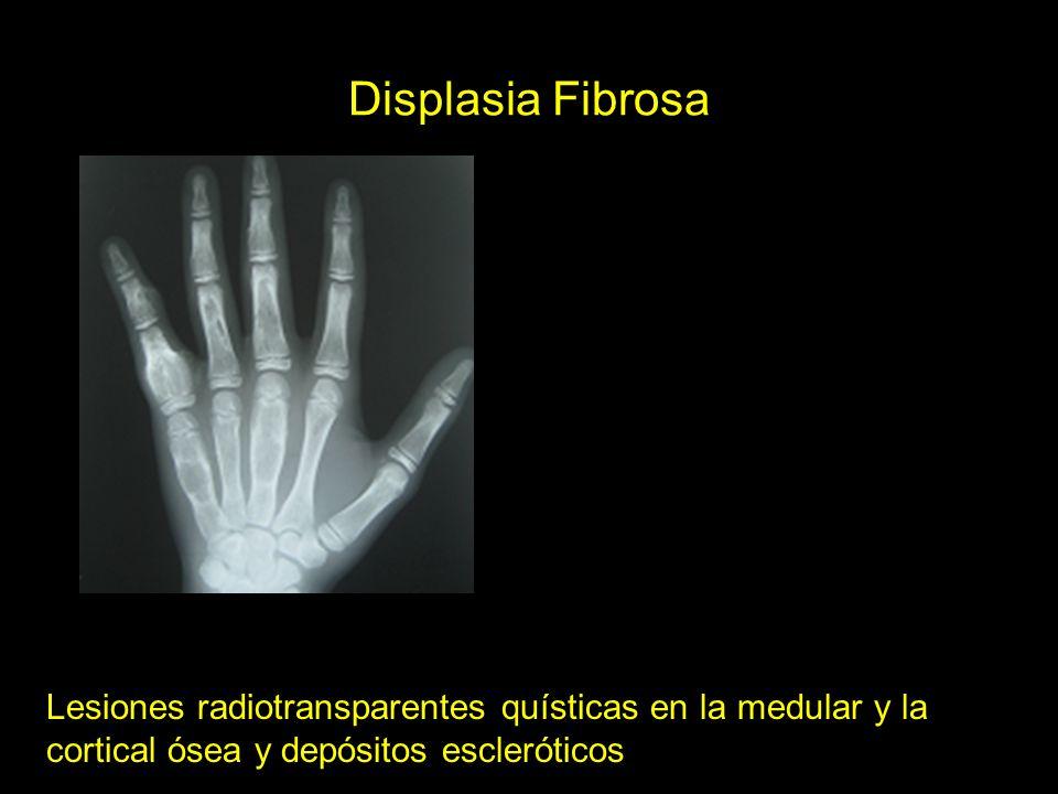 Displasia Fibrosa Lesiones radiotransparentes quísticas en la medular y la cortical ósea y depósitos escleróticos