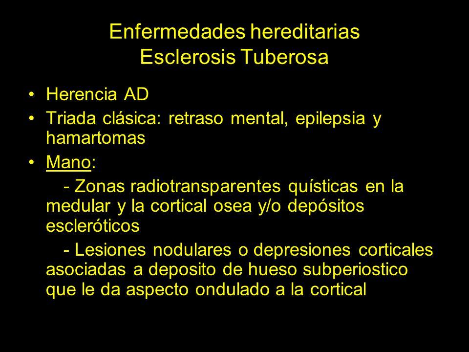 Esclerosis Tuberosa Depresión cortical en el borde radial de la falange proximal de 4º dedo Deposito de hueso subperiostico que le da aspecto ondulado a la cortical en el bordes cubitales de falange proximal de 2º dedo y de 3º MTC