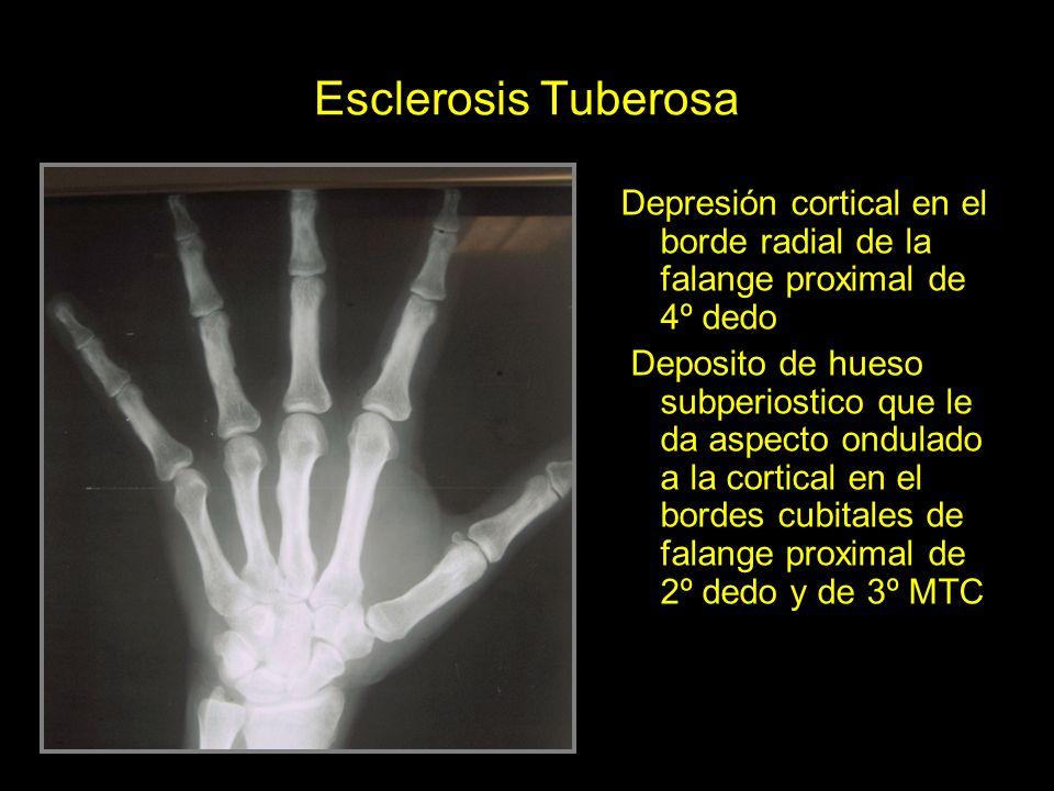 Esclerosis Tuberosa Depresión cortical en el borde radial de la falange proximal de 4º dedo Deposito de hueso subperiostico que le da aspecto ondulado