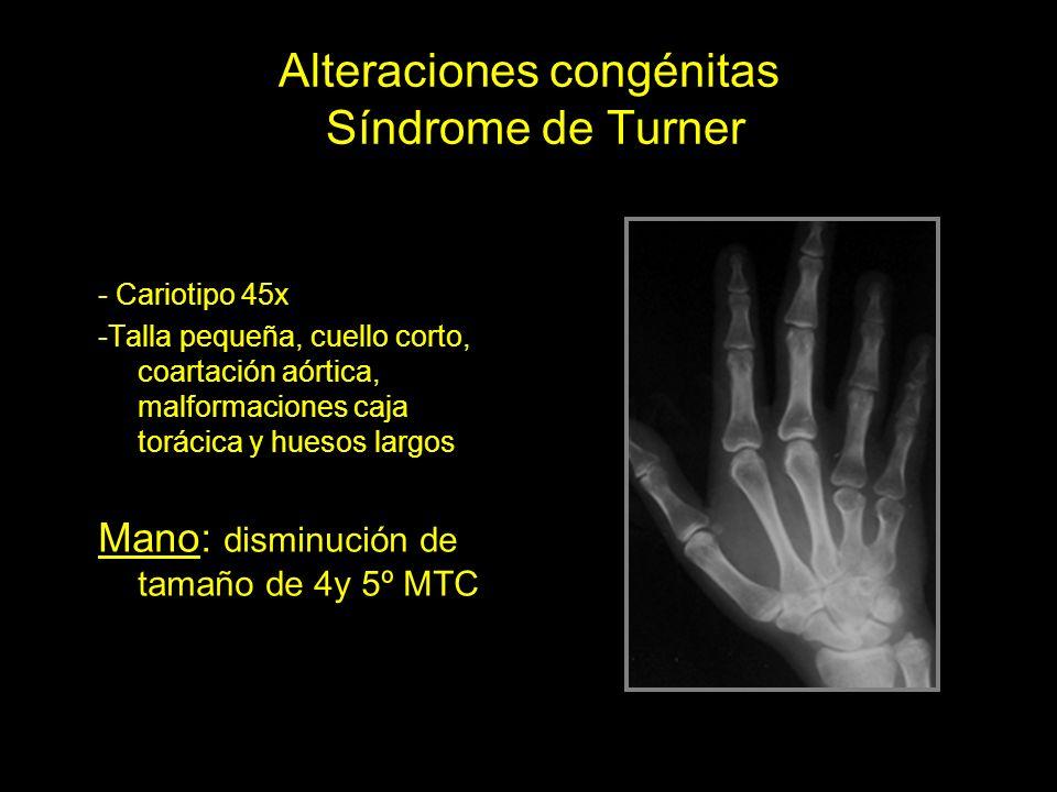 Alteraciones congénitas Síndrome de Turner - Cariotipo 45x -Talla pequeña, cuello corto, coartación aórtica, malformaciones caja torácica y huesos lar