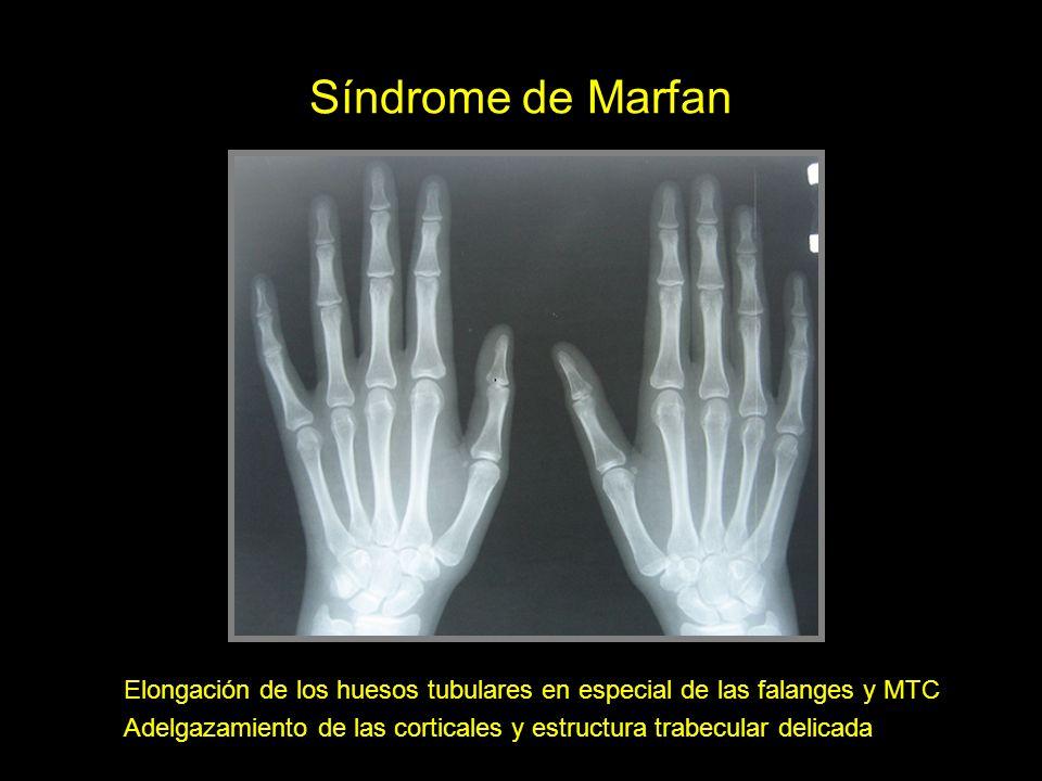 Síndrome de Marfan Elongación de los huesos tubulares en especial de las falanges y MTC Adelgazamiento de las corticales y estructura trabecular delic