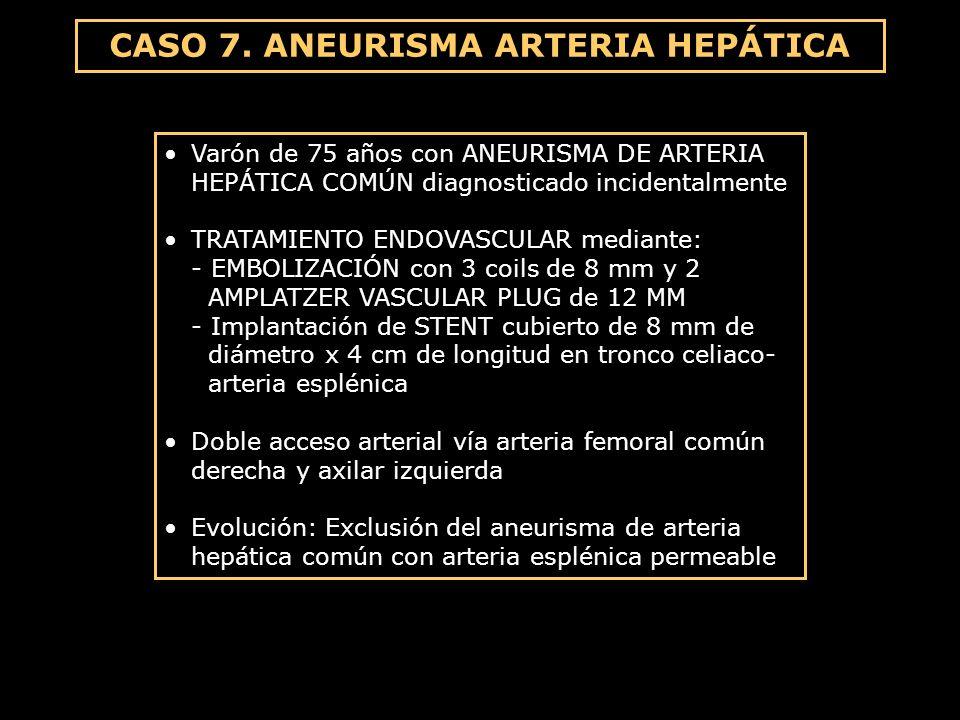 CASO 7. ANEURISMA ARTERIA HEPÁTICA Varón de 75 años con ANEURISMA DE ARTERIA HEPÁTICA COMÚN diagnosticado incidentalmente TRATAMIENTO ENDOVASCULAR med