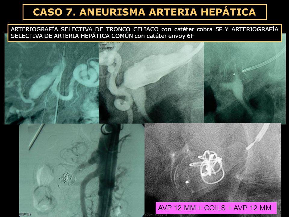 ARTERIOGRAFÍA SELECTIVA DE TRONCO CELIACO con catéter cobra 5F Y ARTERIOGRAFÍA SELECTIVA DE ARTERIA HEPÁTICA COMÚN con catéter envoy 6F AVP 12 MM + CO