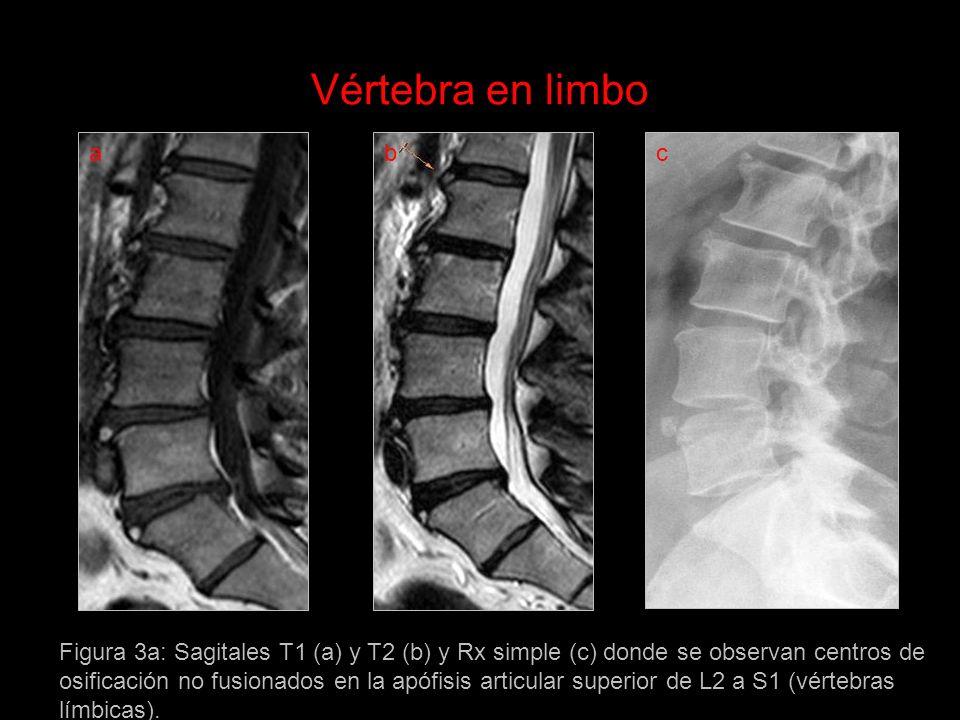 Vértebra en limbo abc Figura 3a: Sagitales T1 (a) y T2 (b) y Rx simple (c) donde se observan centros de osificación no fusionados en la apófisis articular superior de L2 a S1 (vértebras límbicas).