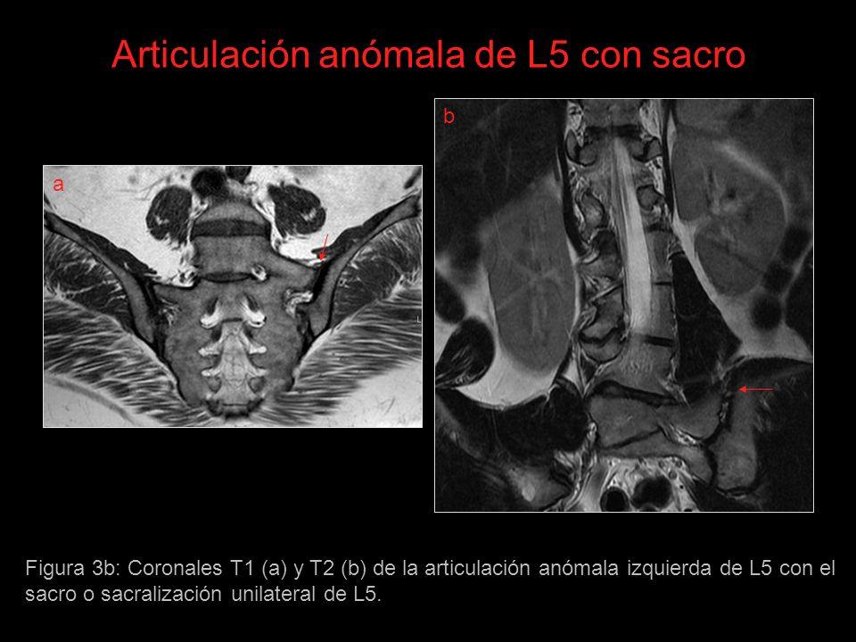 Articulación anómala de L5 con sacro Figura 3b: Coronales T1 (a) y T2 (b) de la articulación anómala izquierda de L5 con el sacro o sacralización unilateral de L5.