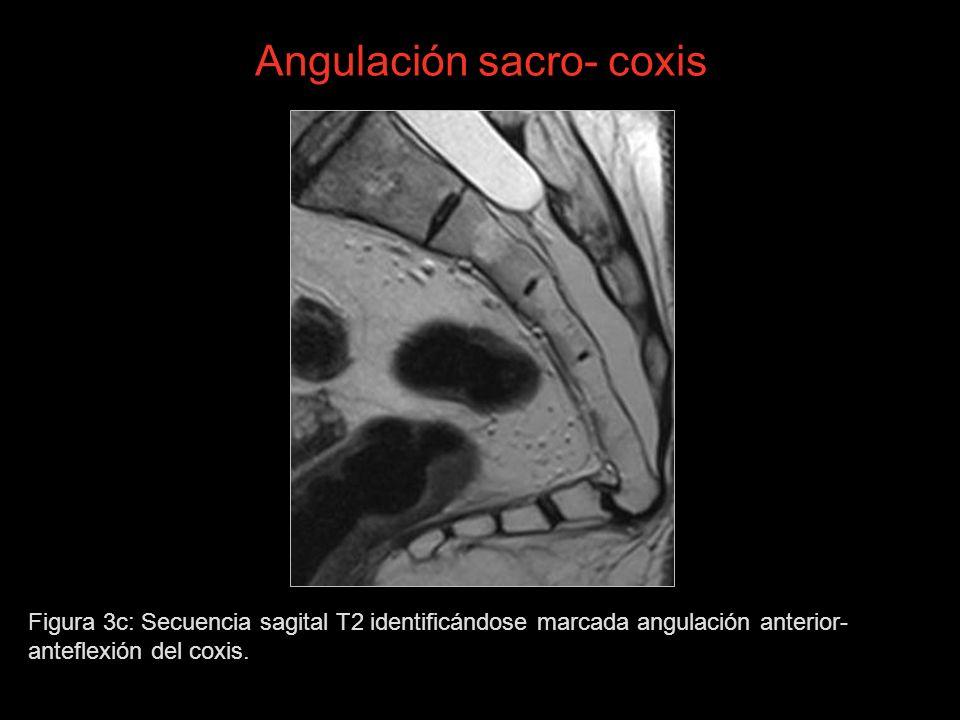 Angulación sacro- coxis Figura 3c: Secuencia sagital T2 identificándose marcada angulación anterior- anteflexión del coxis.