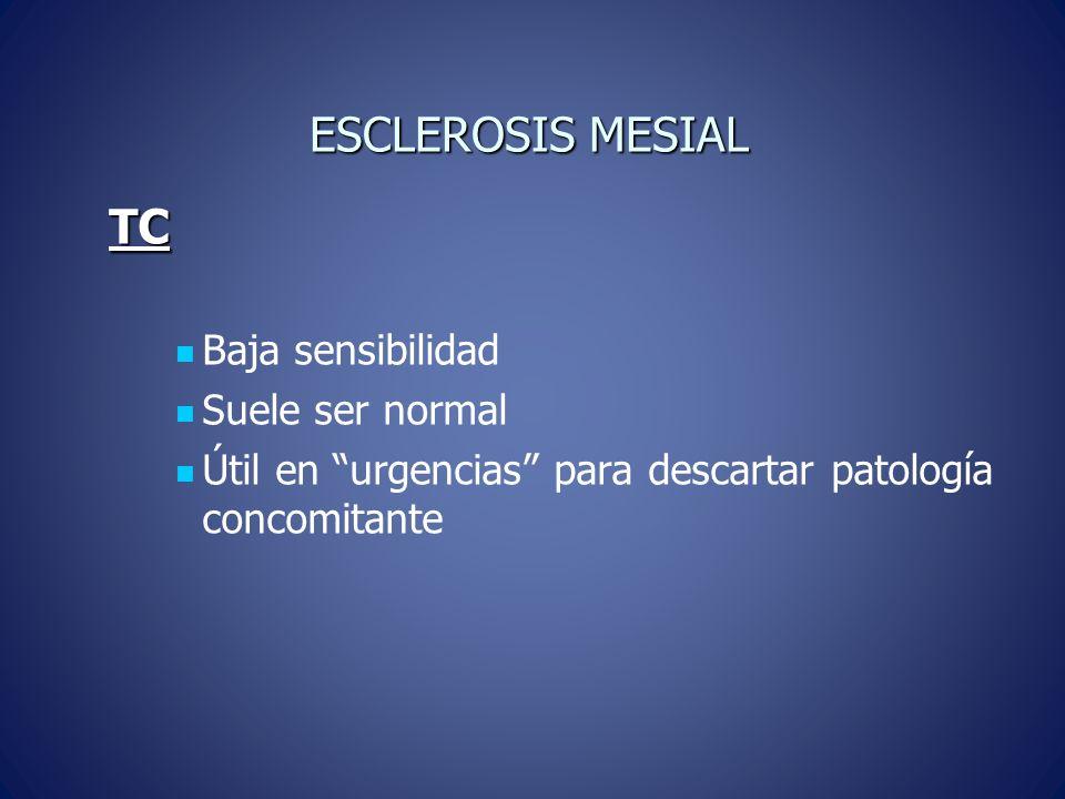 ESCLEROSIS MESIAL RM BASAL: T1 se observa disminución del tamaño del hipocampo y en secuencias TE largo aumento de la señal.