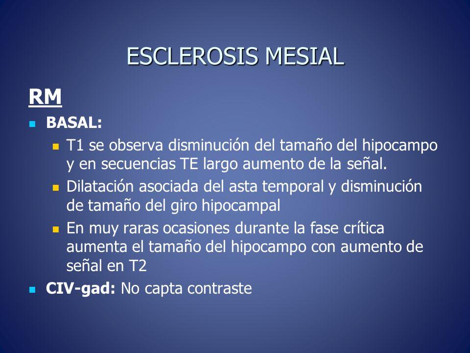 ESCLEROSIS MESIAL RM BASAL: T1 se observa disminución del tamaño del hipocampo y en secuencias TE largo aumento de la señal. Dilatación asociada del a