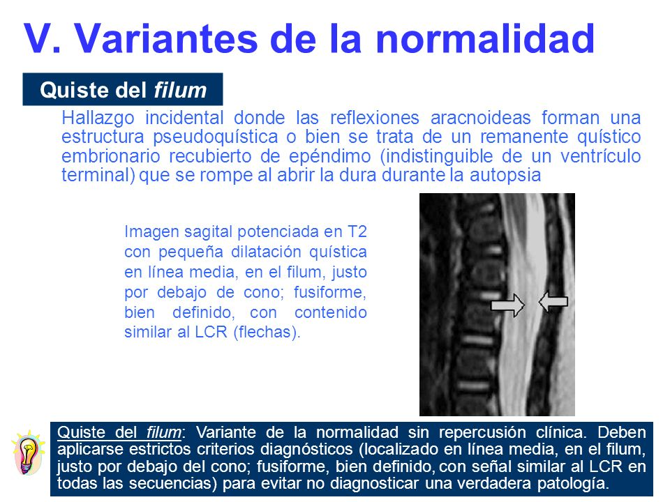 Filum Terminale prominente Un filum terminale prominente puede causar confusión al resaltar con respecto al resto de las raíces nerviosas.