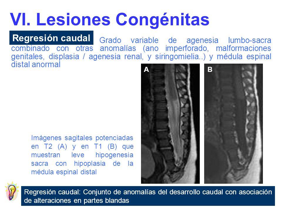 Imagen axial potenciada en T1 (A) y coronal potenciada en T2 (B) que muestran un tabique fibroso que divide en dos hemimédulas (flecha) la médula espinal Hendidura sagital de la médula espinal o del filum terminale en dos mitades secundaria a un septo fibroso, óseo u osteocartilaginoso.