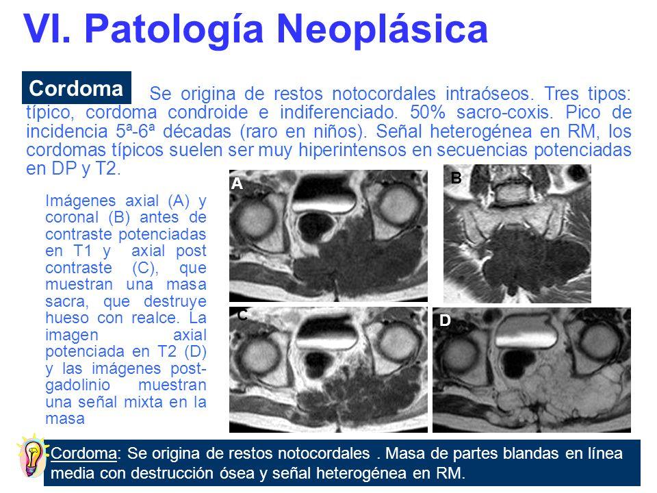 Lesión única, mientras que el mieloma múltiple es una proliferación monoclonal de células plasmáticas malignas que afecta la médula ósea.