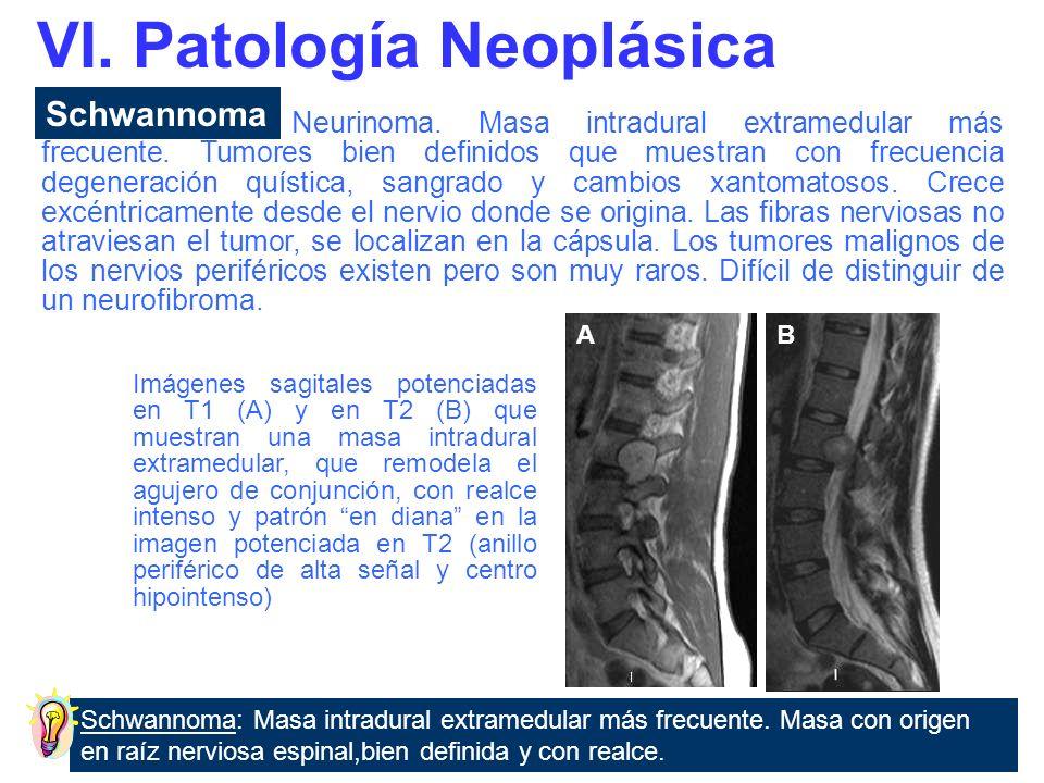 Neurofibroma Morfología fusiforme, sin cápsula.