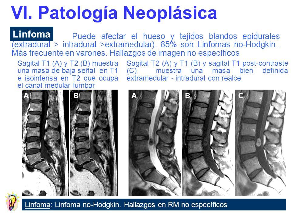 Metástasis: Aspecto variable.Extradural = Lesión que destruye el hueso.
