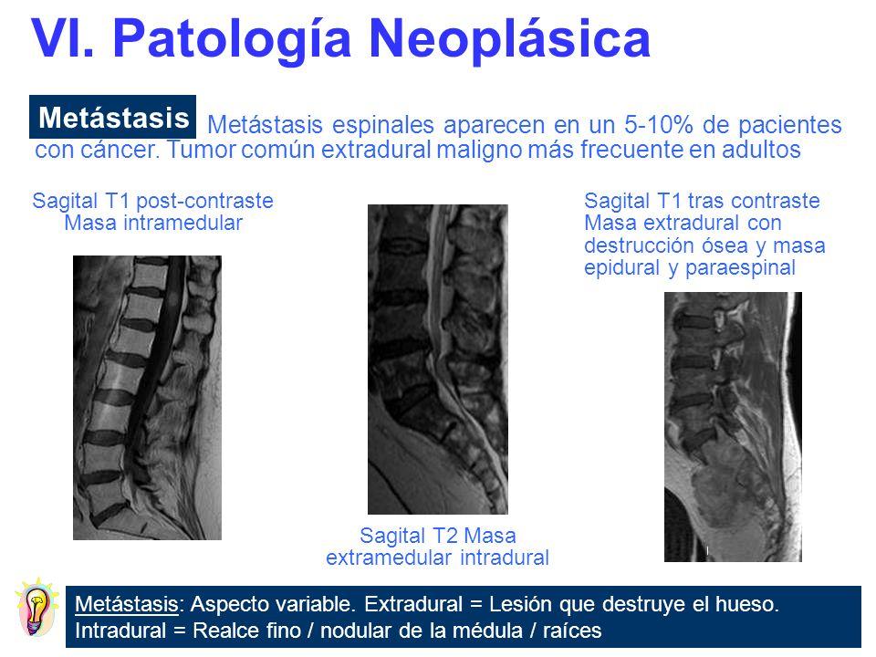 Metástasis: Aspecto variable. Extradural = Lesión que destruye el hueso. Intradural = Realce fino / nodular de la médula / raíces Metástasis espinales