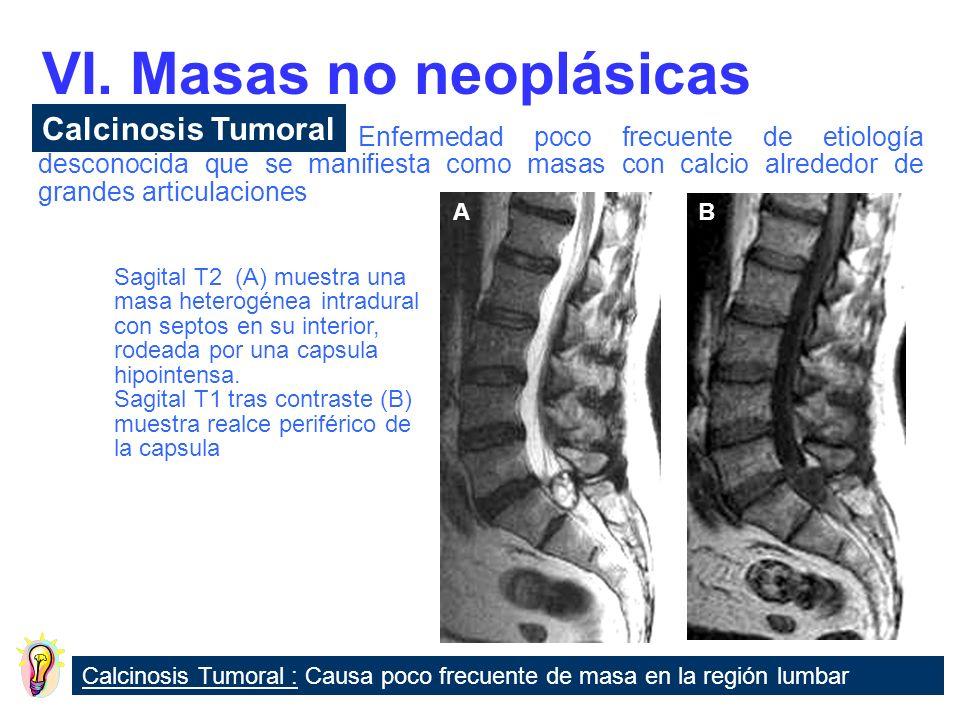 LesionesDefinición Fibrosis epidural Cicatriz tras cirugía lumbar Aracnoiditis postquirúrgica Raíces nerviosa agrupadas y con realce tras contraste VI.