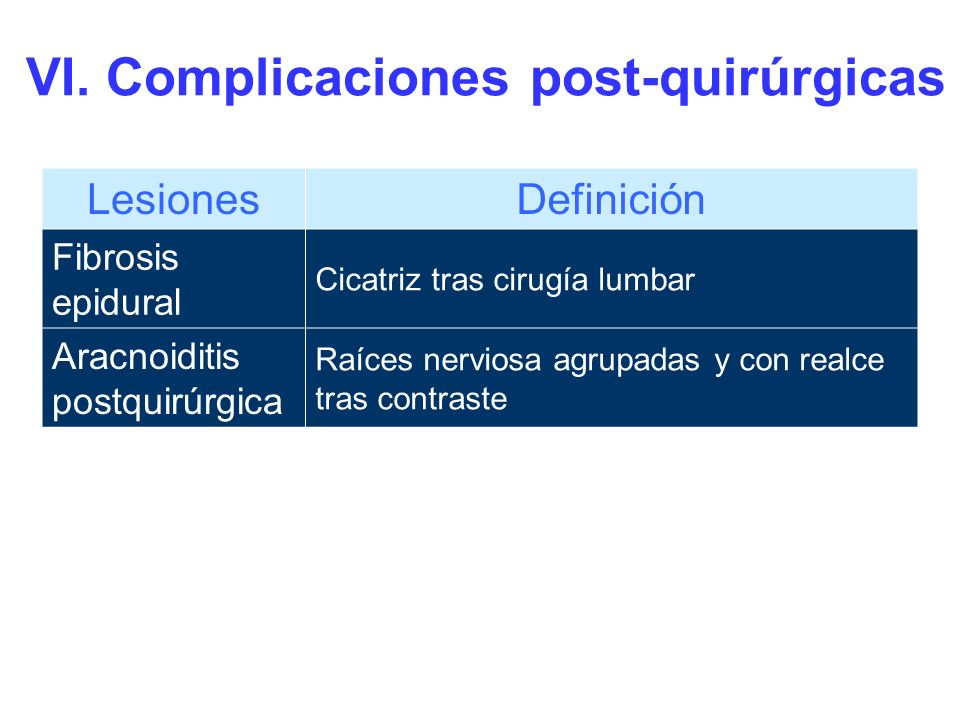 Cicatriz tras cirugía lumbar Fibrosis epidural: Masa de partes blandas epidural y perineural que realza tras contraste.