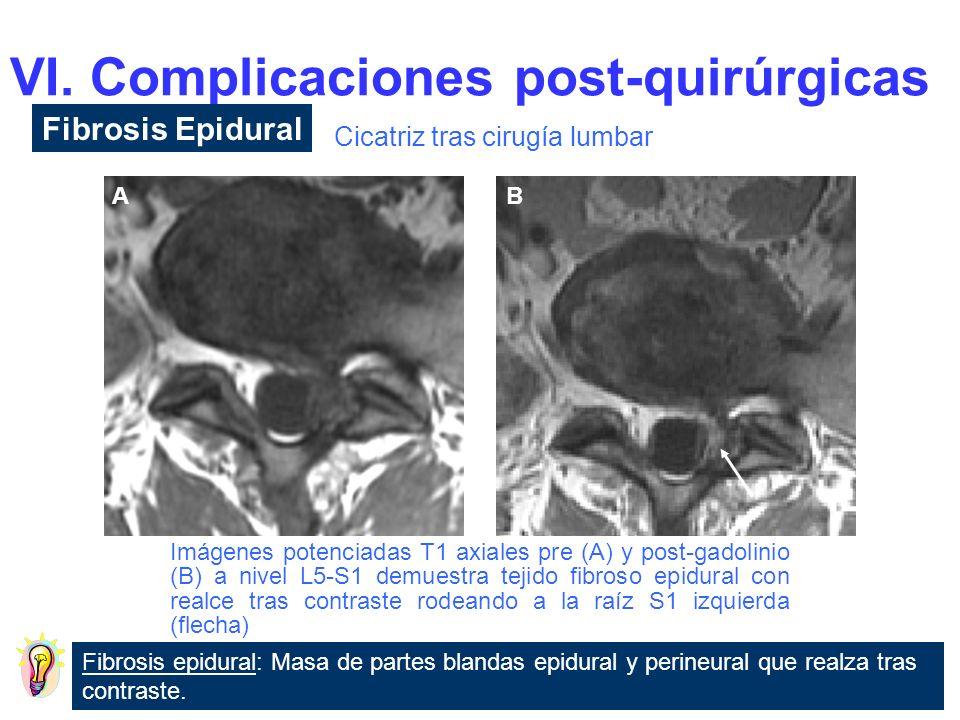 Adherencia postinflammatoria y agrupamiento de las raíces de la cola de caballo.