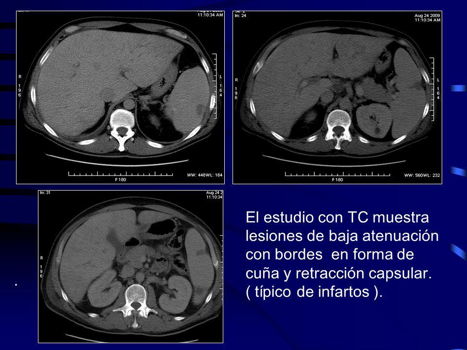 . El estudio con TC muestra lesiones de baja atenuación con bordes en forma de cuña y retracción capsular. ( típico de infartos ).