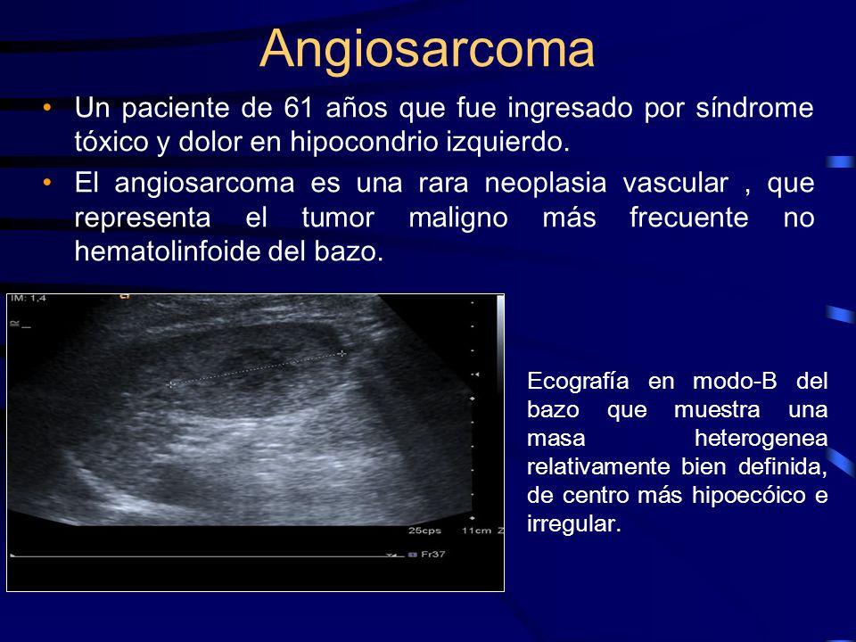 Angiosarcoma Un paciente de 61 años que fue ingresado por síndrome tóxico y dolor en hipocondrio izquierdo. El angiosarcoma es una rara neoplasia vasc