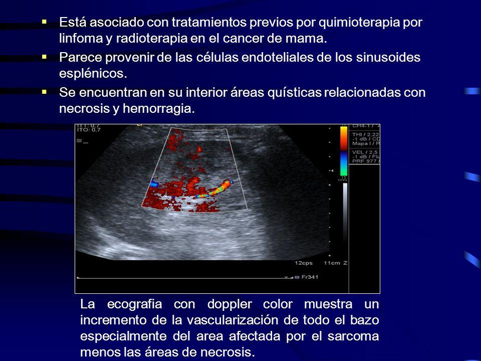 Está asociado con tratamientos previos por quimioterapia por linfoma y radioterapia en el cancer de mama. Parece provenir de las células endoteliales