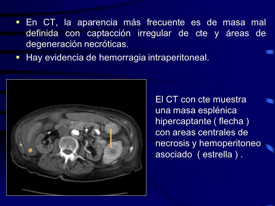 En CT, la aparencia más frecuente es de masa mal definida con captacción irregular de cte y áreas de degeneración necróticas. Hay evidencia de hemorra