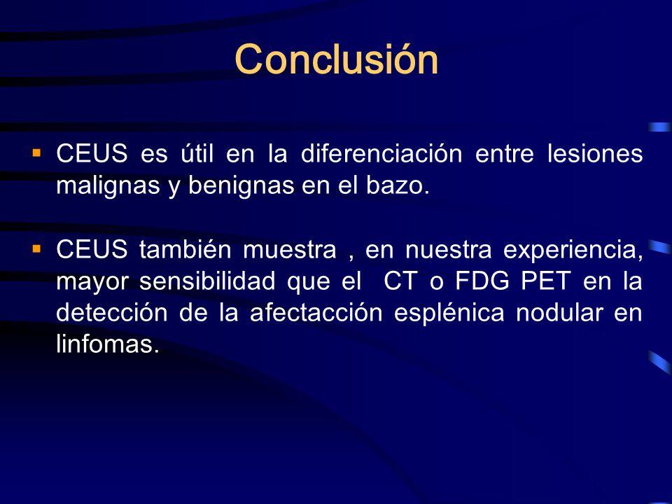 Conclusión CEUS es útil en la diferenciación entre lesiones malignas y benignas en el bazo. CEUS también muestra, en nuestra experiencia, mayor sensib